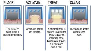 Natural Cystic Acne Treatment Options