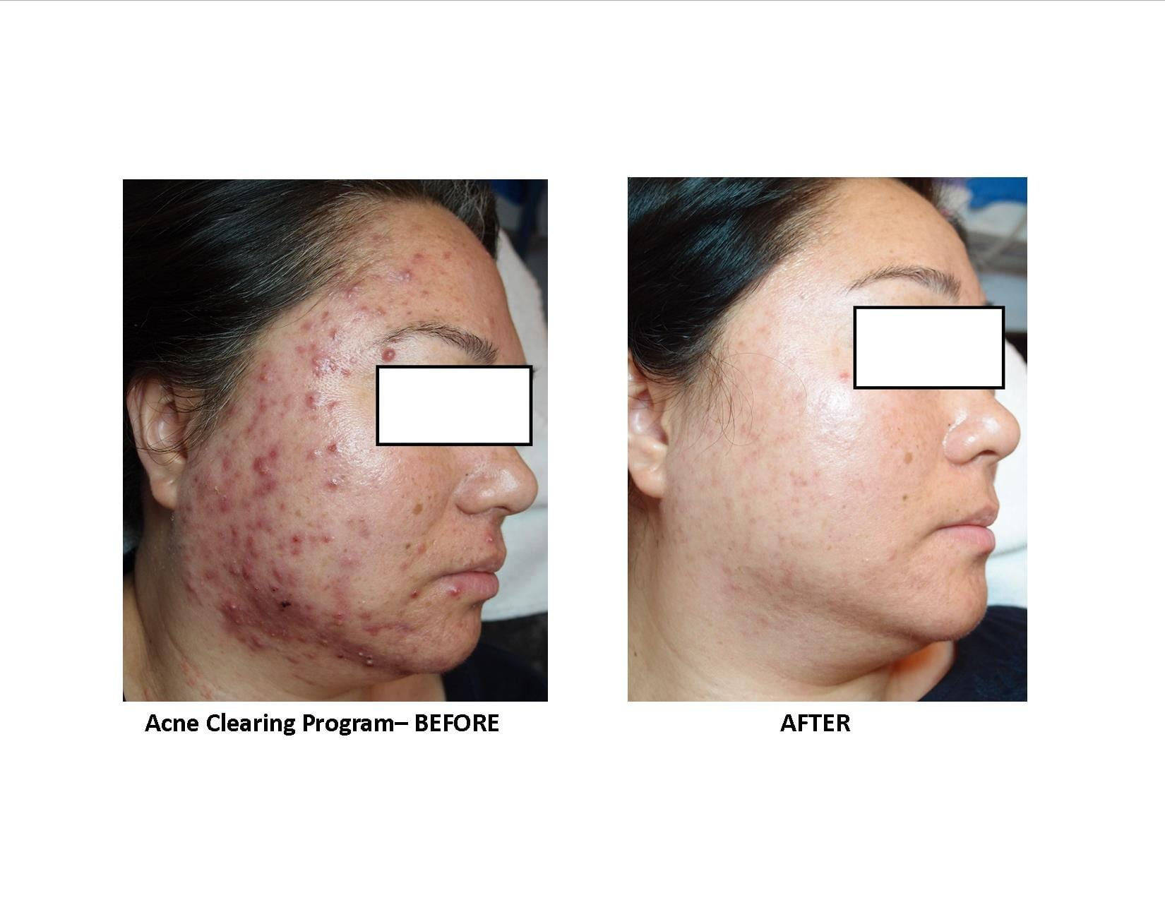 Natural Acne Clinic Reviews