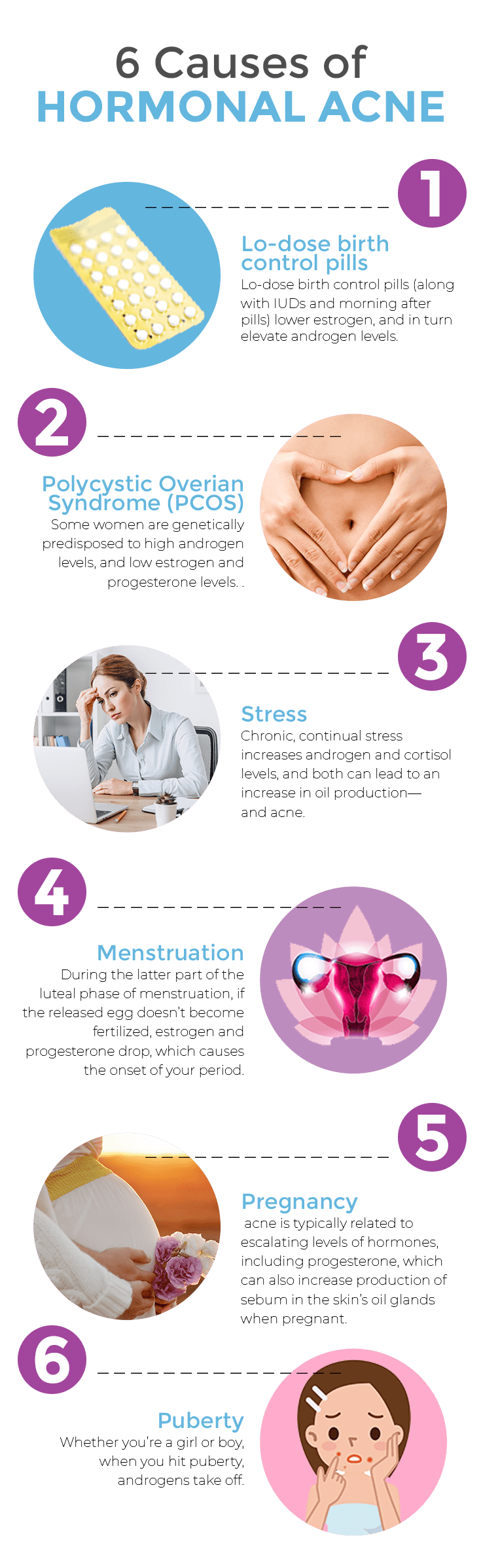 6 Causes of Hormonal Acne Infographic