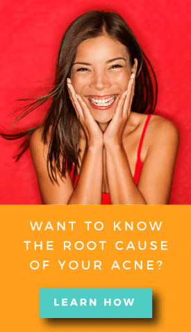root cause of acne